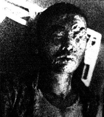 Japanese experiment unit 731 images